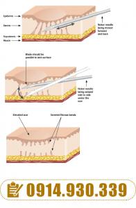 Hình 3. Kỹ thuật cắt đáy sẹo